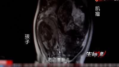 幸福家庭惨遭选择 孕妇腹中惊现巨大肌瘤