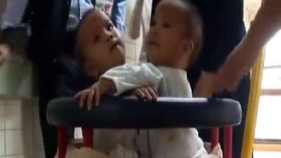 分身独立的连体婴 珍妮和洁妮的故事