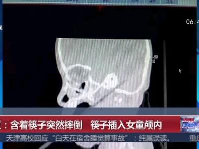 [视频]武汉:含着筷子突然摔倒 筷子插入女童颅内