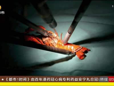 """湖南机器人""""达芬奇""""单日可做手术9台"""