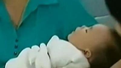 烫伤之后如何处理? 儿童房安全隐患大排查