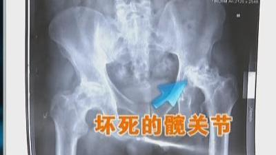 股骨头坏死晚期患者如何重新站起来走路